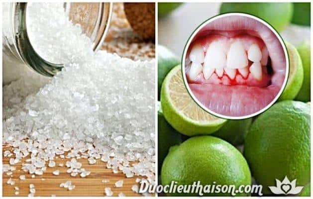 Muối và nước chanh trị chảy máu chân răng