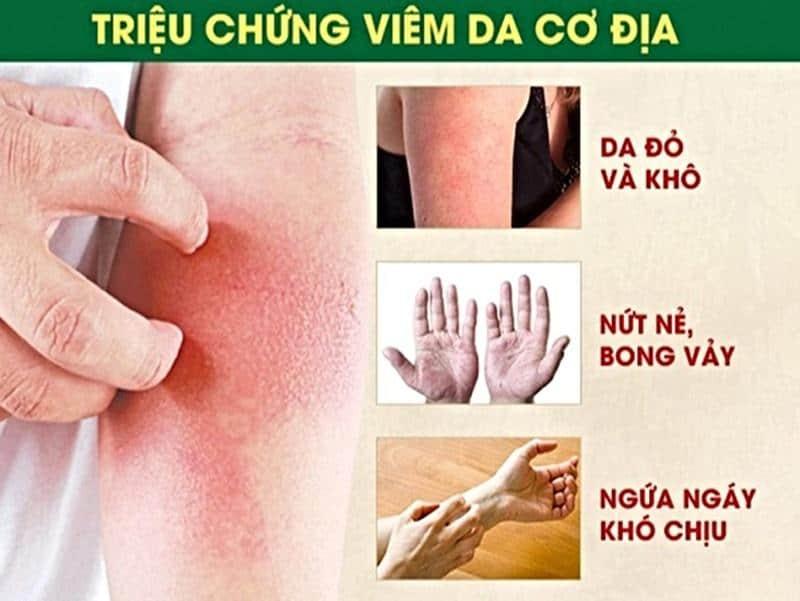 Chi tiết triệu chứng bệnh viêm da cơ địa