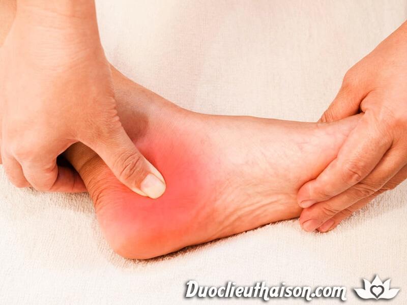 Một chế độ ăn hợp lý cung cấp đầy đủ canxi sẽ giúp bạn giảm thiểu các cơn đau gót chân