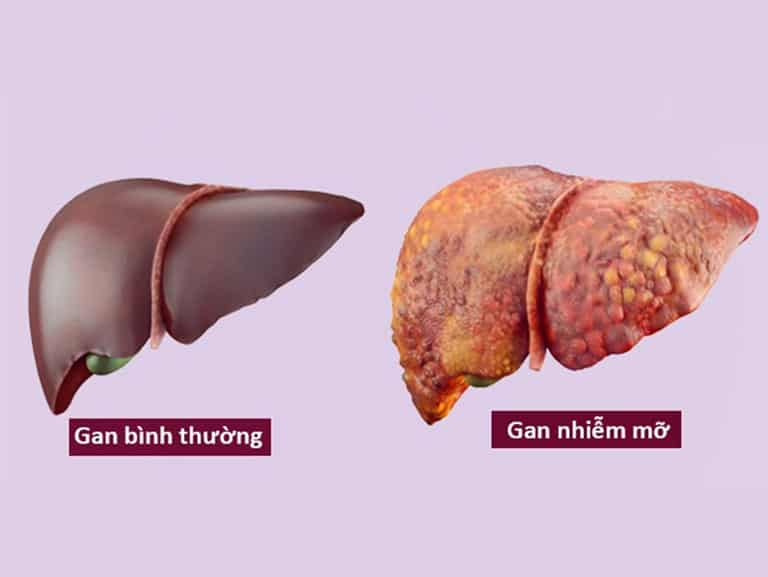 Gan nhiễm mỡ là tình trạng lượng mỡ dư thừa tích tụ trong gan quá nhiều